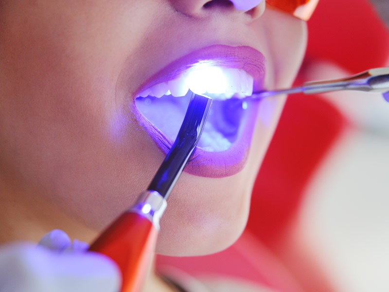 White / Tooth coloured fillings with composite bonding